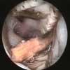 We hebben een nieuw apparaat een endoscoop waar je diagnoses mee  kunt stellen en foto's vast leggen