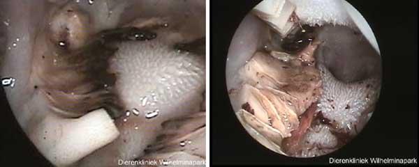 Bij een afwijkende slijtage door een kaakgewrichtsprobleem kunnen er vleugels op de kiezen ontstaan