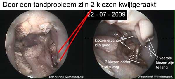 Er zijn door een tandabces twee kiezen verloren geraakt, in dit gat komt voedsel en de kiezen van d ebovenkaak blijven doorgroeien