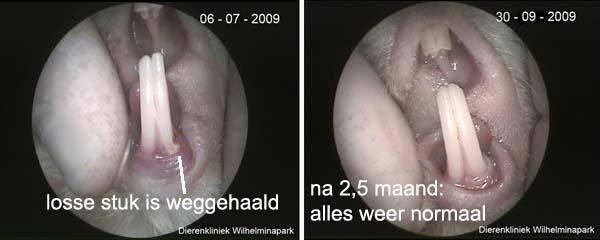 Het dunne gedeele is verwijderd, na 2,5 maand is d etand weer volledig genezen