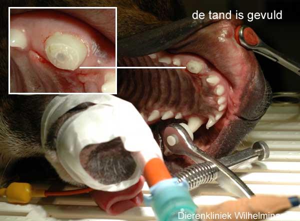 Het eindresultaat is hier te zien, de tand heeft een witte vulling